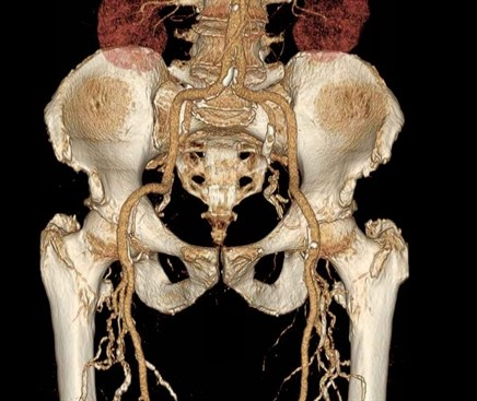 Femoral Artery Atherosclerosis More Common in Psoriasis