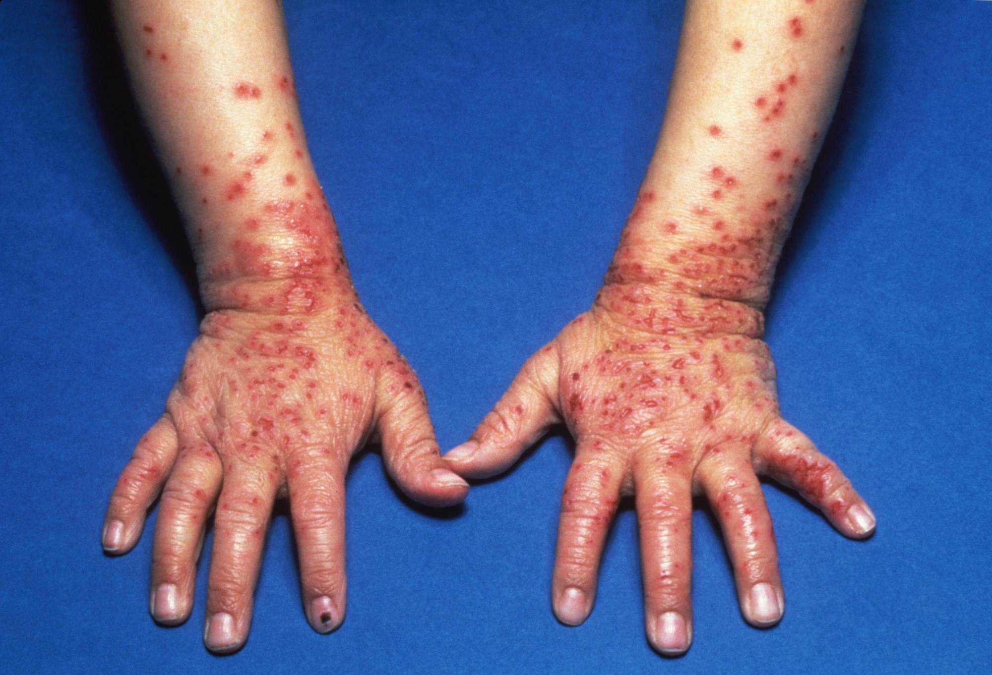The study findings support the heavy burden that atopic dermatitis places on patients, particularly those with moderate and severe disease. <i>Credit:Medical Images RM / BOB TAPPER</i>