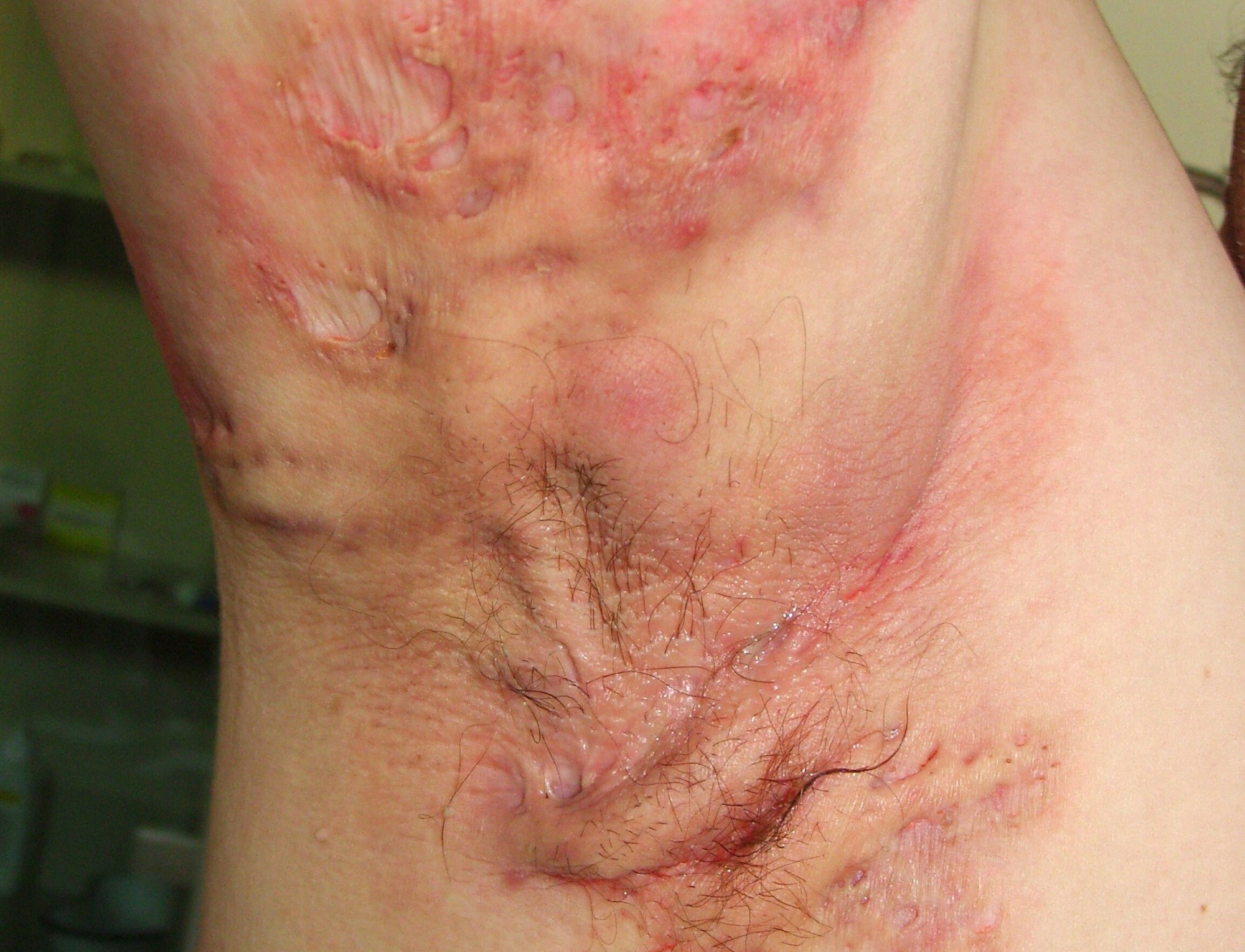 Lower-Dose Spironolactone Effective for Hidradenitis Suppurativa With Tolerability Issues