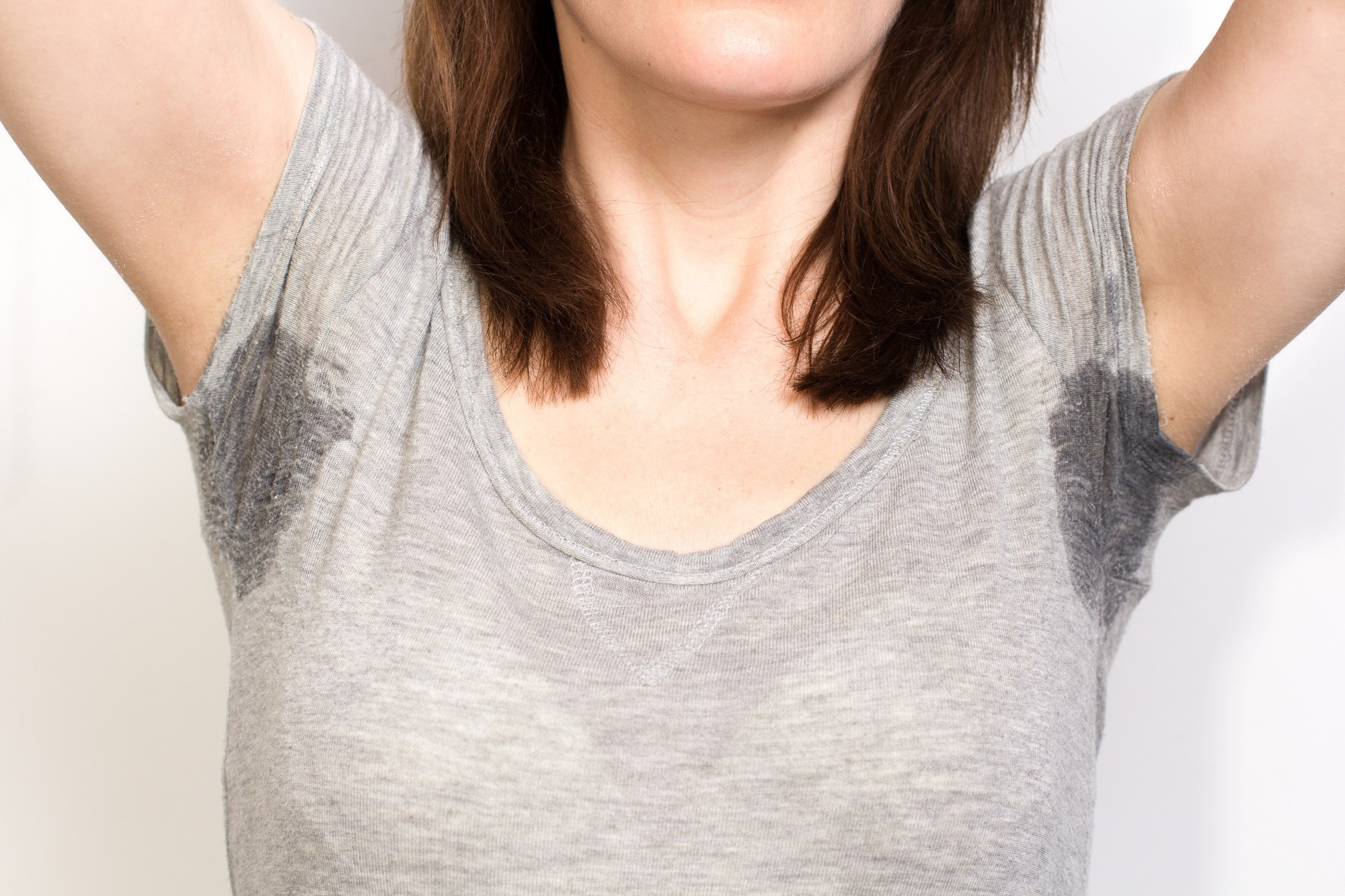 Obesity Associated With Increased Risk for Hyperhidrosis in Adolescents