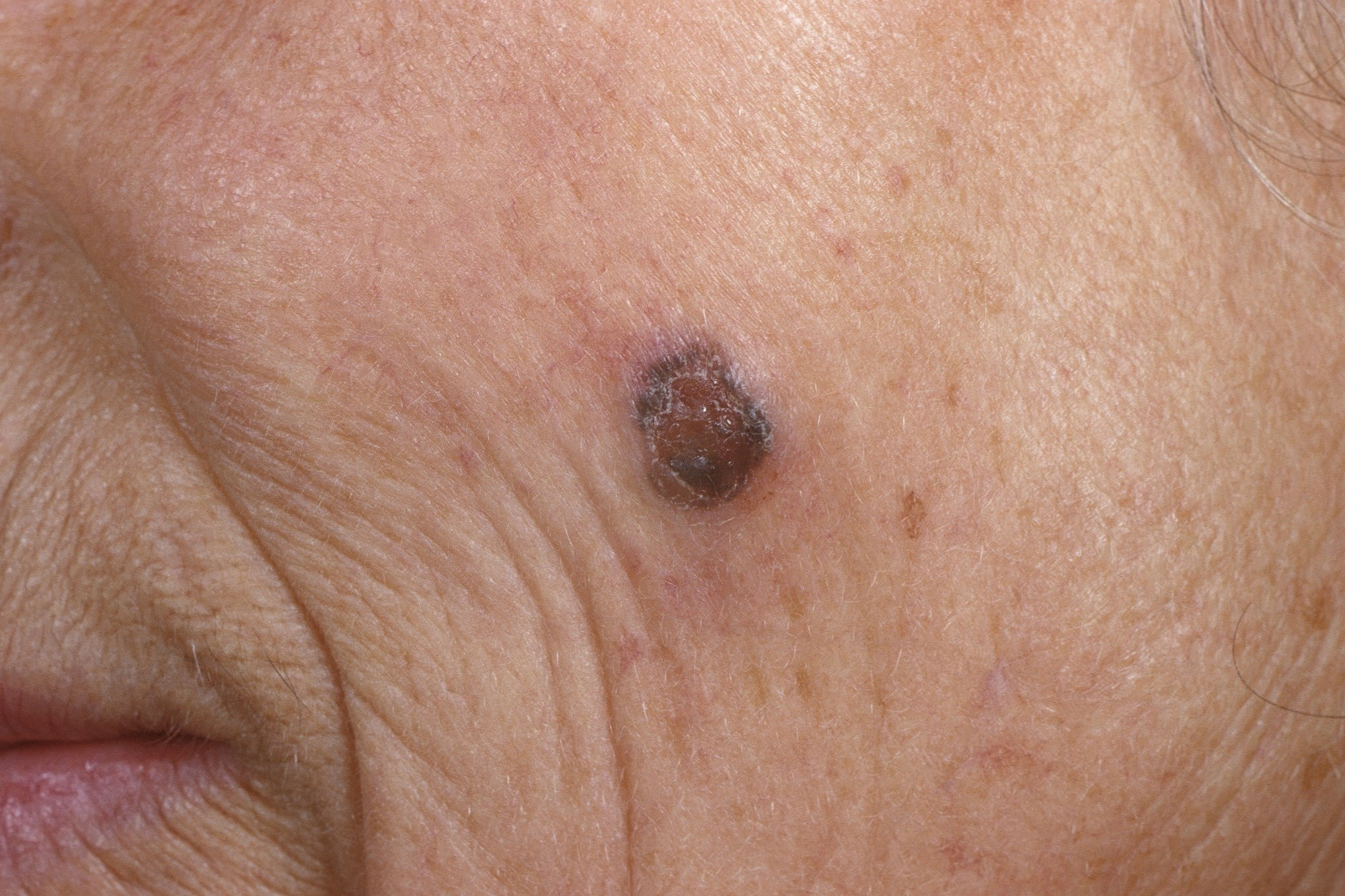 Age, Education Predict Skin Protection Following Melanoma Diagnosis