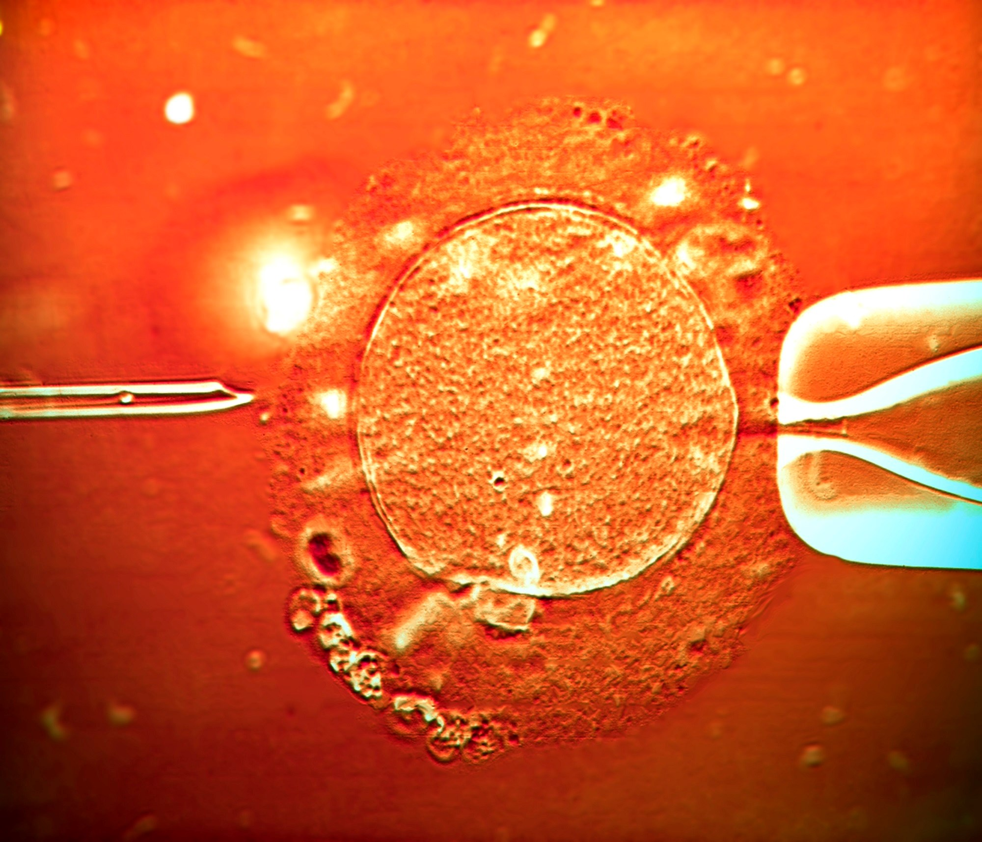 Live Birth Rates Unaffected by Endometrial Scratching During In Vitro Fertilization