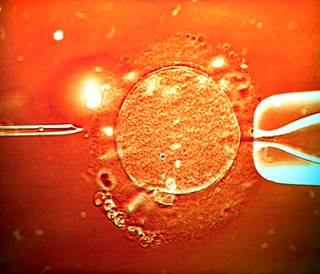 Nearly 25% of the women included in the study had previously undergone at least 2 unsuccessful embryo transfers.