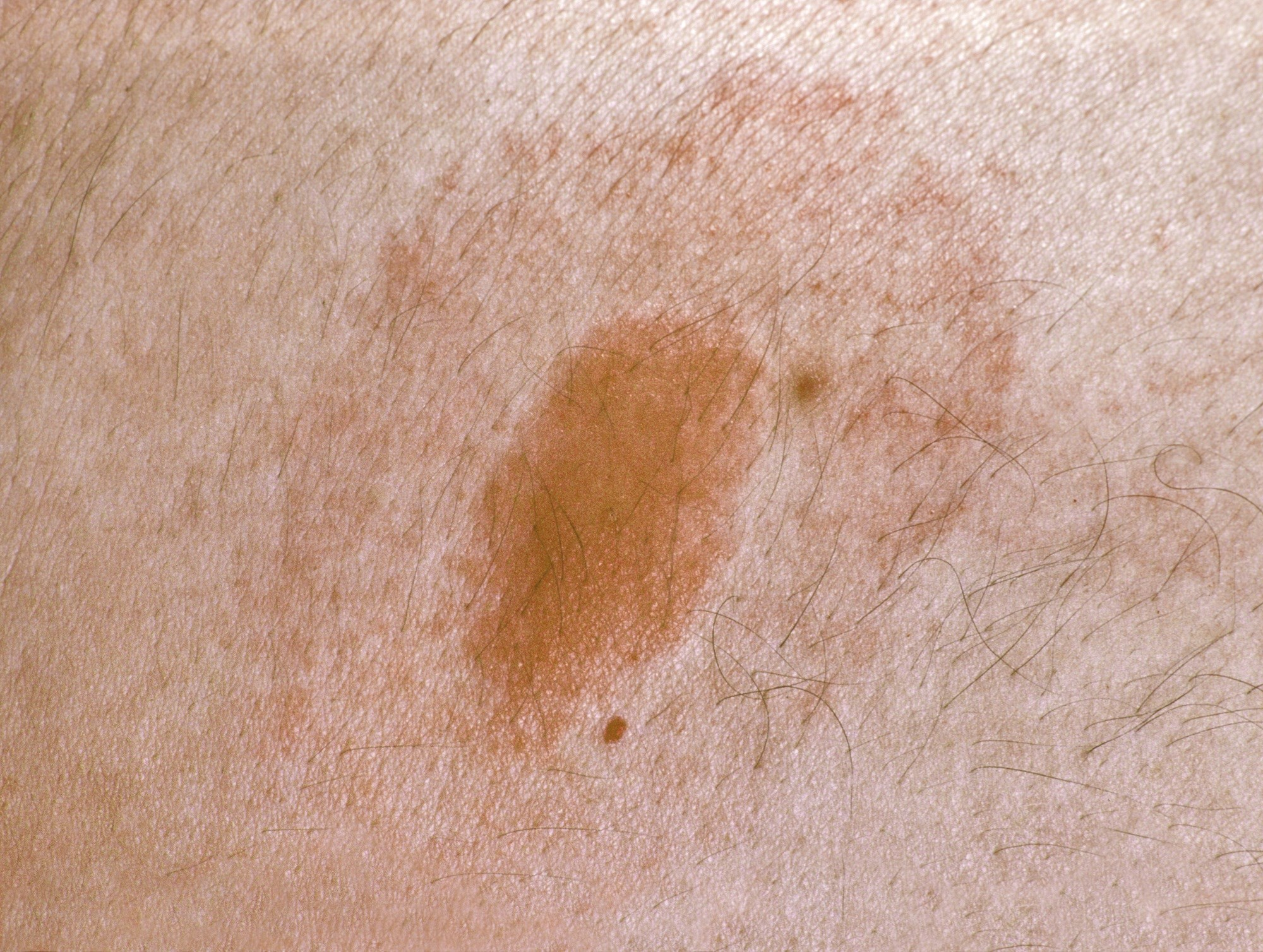 At baseline, more symptoms associated with Lyme borreliosis were reported by those with multiple erythema migrans than with solitary erythema migrans.