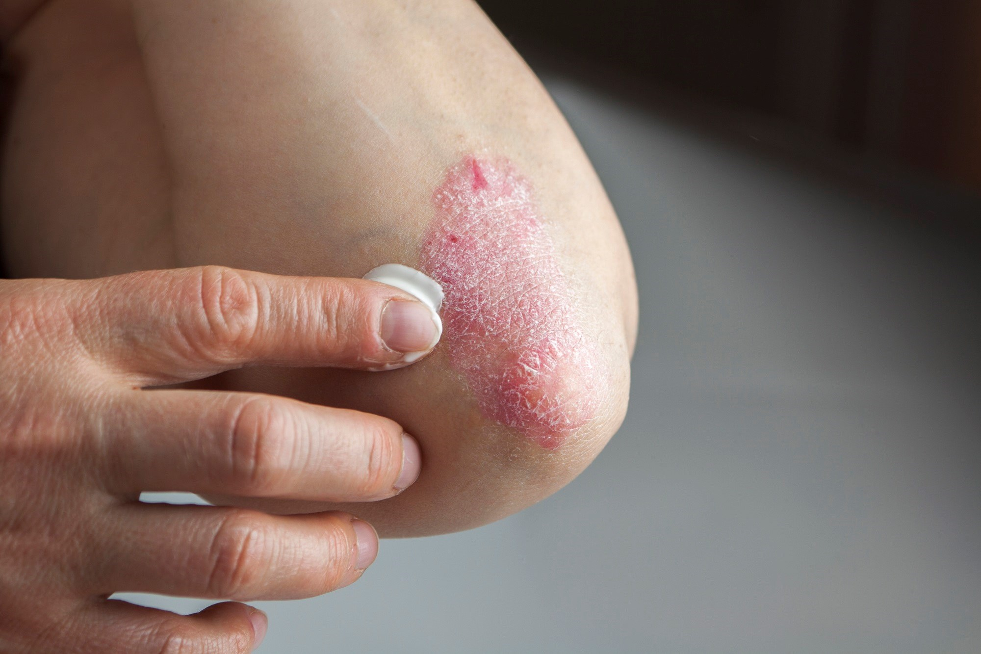 Bryhali Lotion Gets Tentative Approval for Plaque Psoriasis