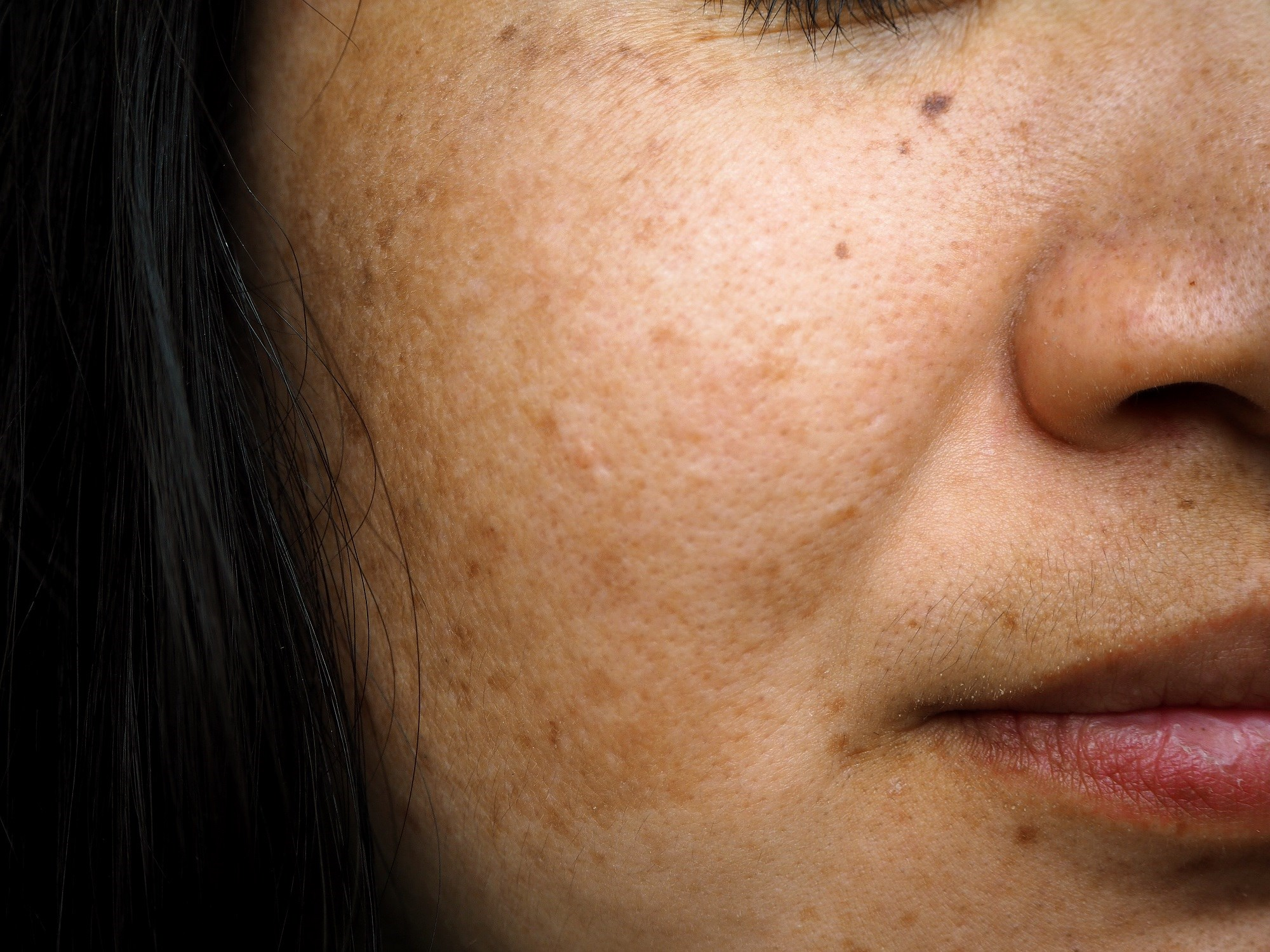 Topical Liposomal Hydroquinone vs Conventional Treatments for Melasma: Which Is Better?