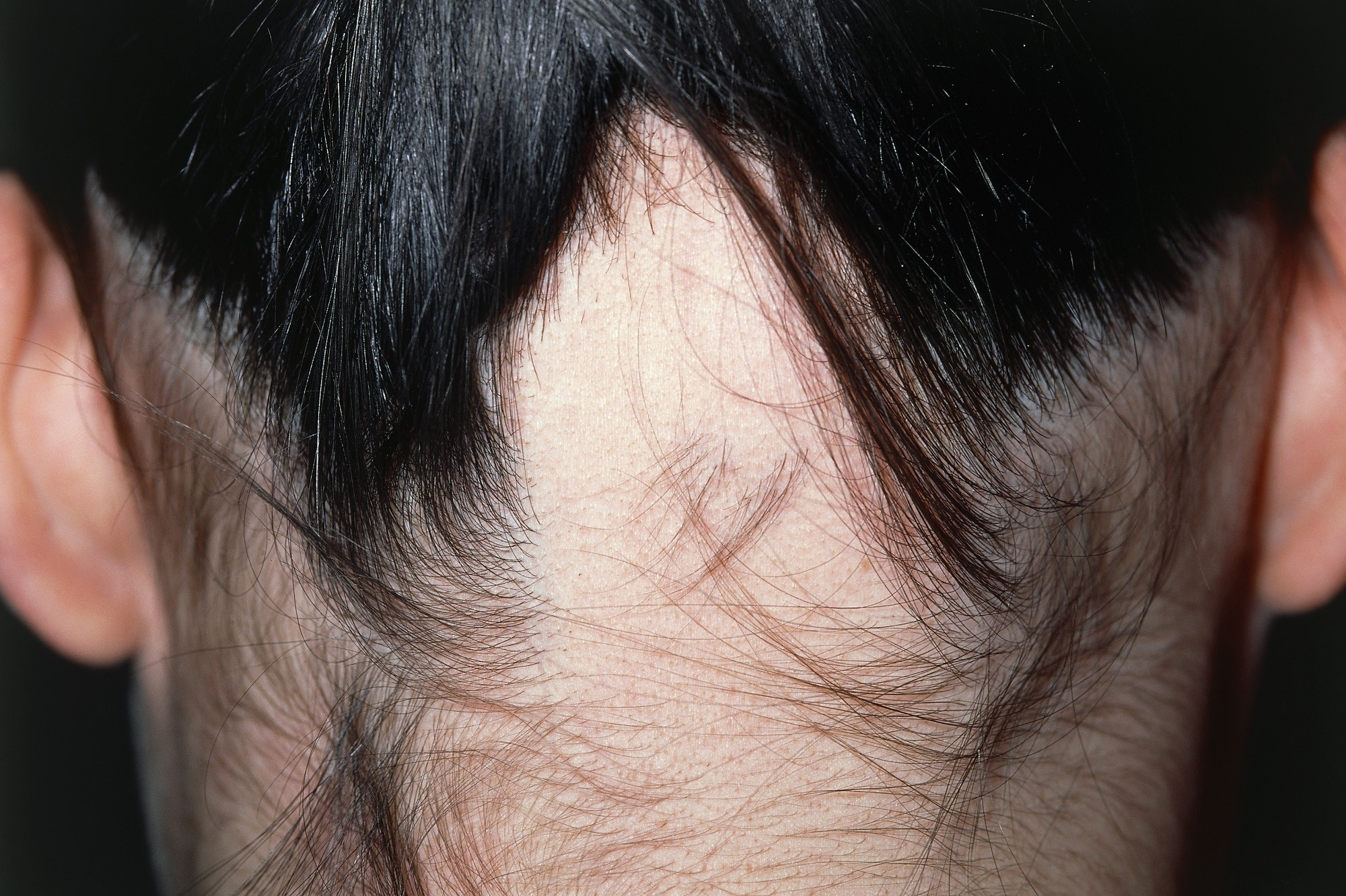 Disease Extent, Nail Involvement May Predict Clinical Outcomes of Contact Immunotherapy for Alopecia Areata