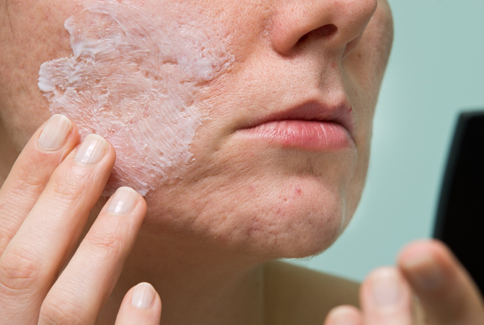 Tretinoin 0.05 percent lotion provides statistically significant improvement in patients with moderate-to-severe acne, compared to placebo.