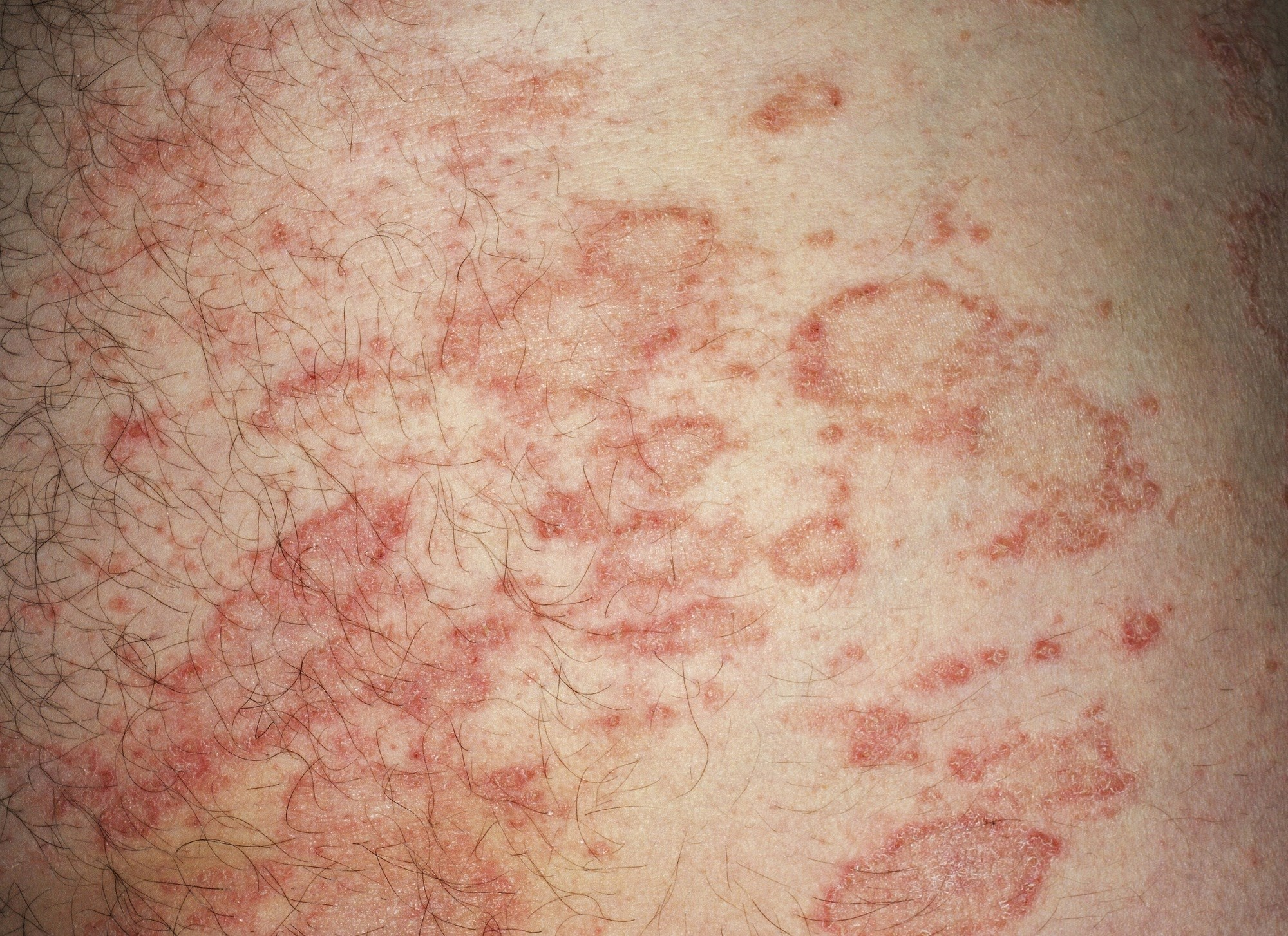 Improved Systemic, Cutaneous Abnormalities With Dupilumab in Atopic Dermatitis