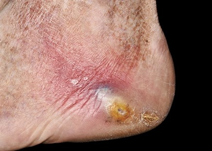 Skin Disease and Metabolic Syndrome: Early Warning Signs of a Greater Problem