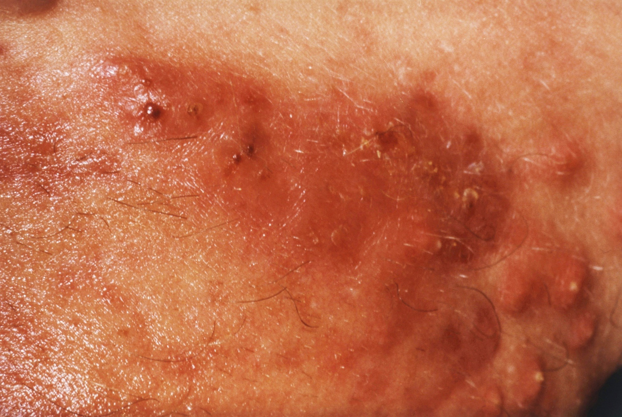 Efficacy of Acne Vulgaris Topical Treatment is Schedule-Dependent
