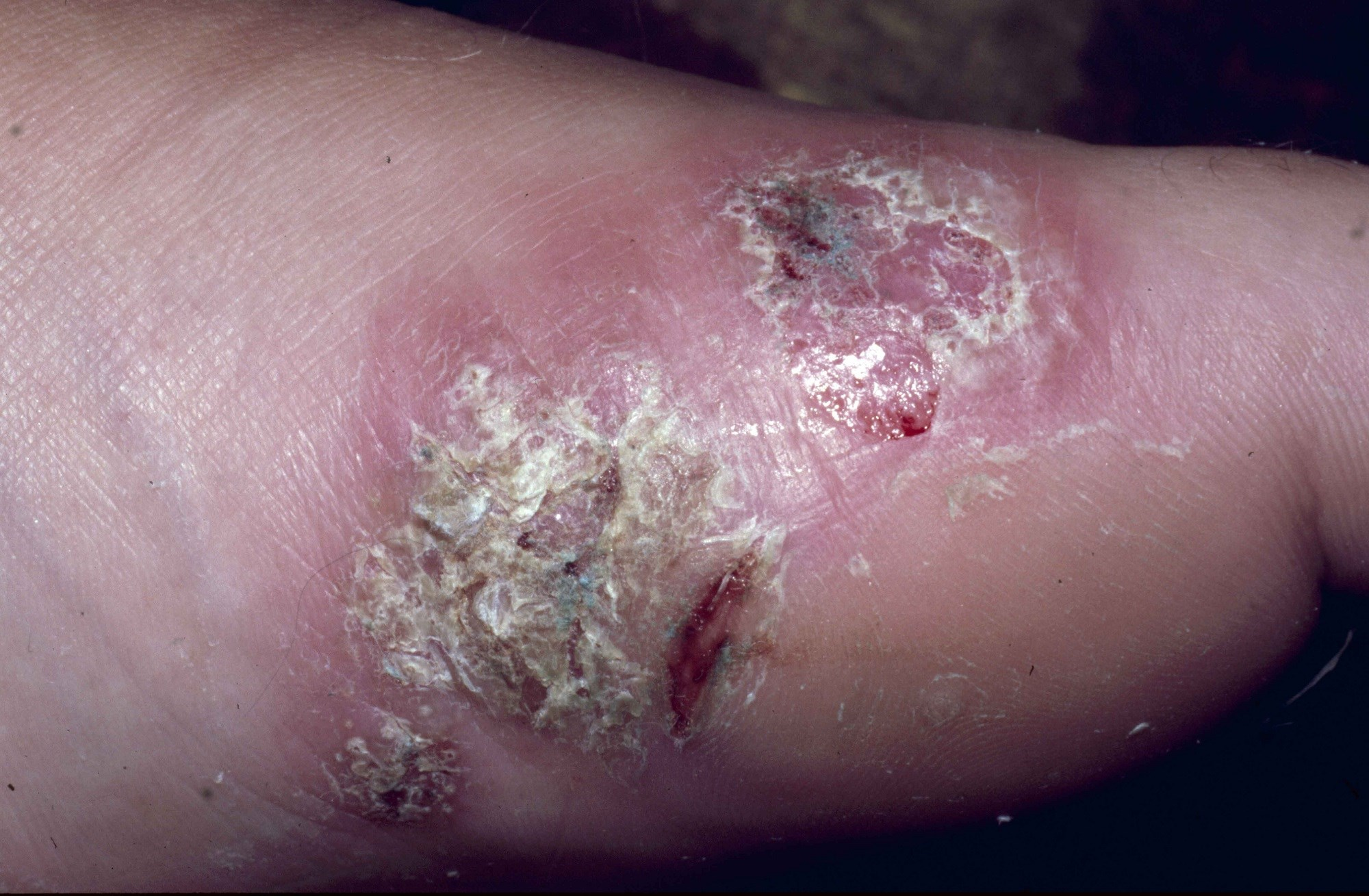 More research is needed to better understand the pathophysiologic mechanisms that result in increased risk for infection among individuals with psoriasis.