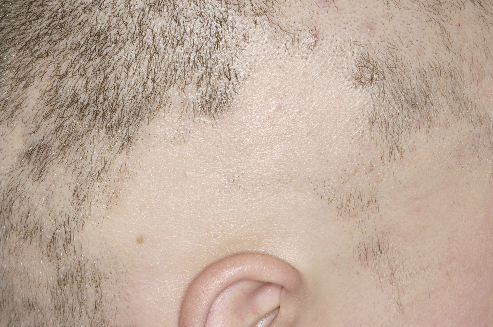 Low-Dose Ruxolitinib May Promote Hair Regrowth in Severe Alopecia