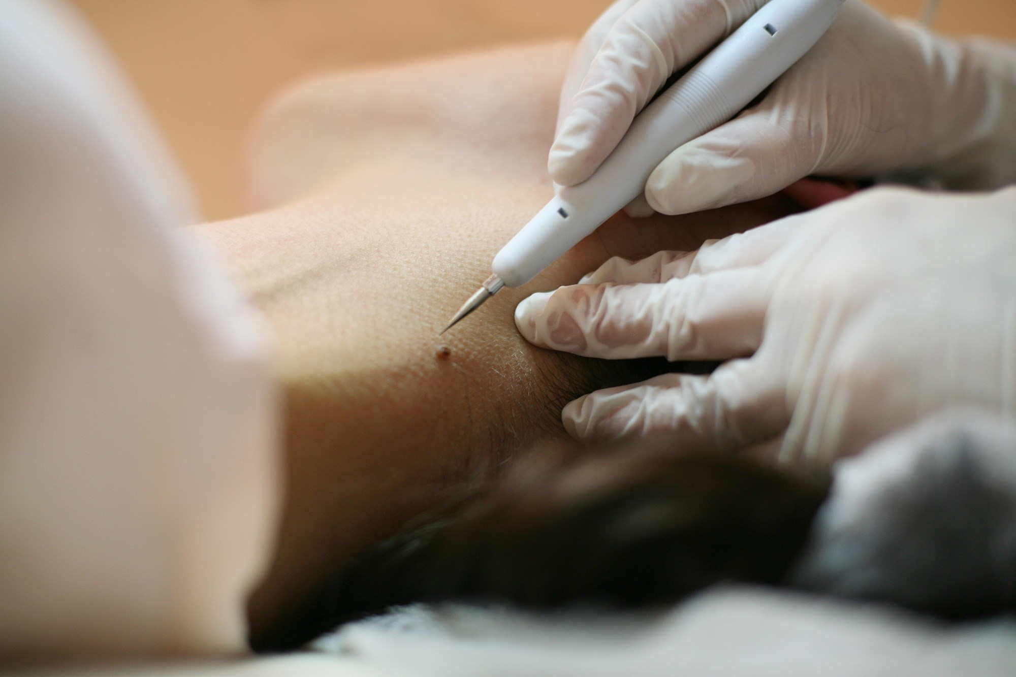 Non-Physician Practitioners Expanding Scope of Practice in Dermatology