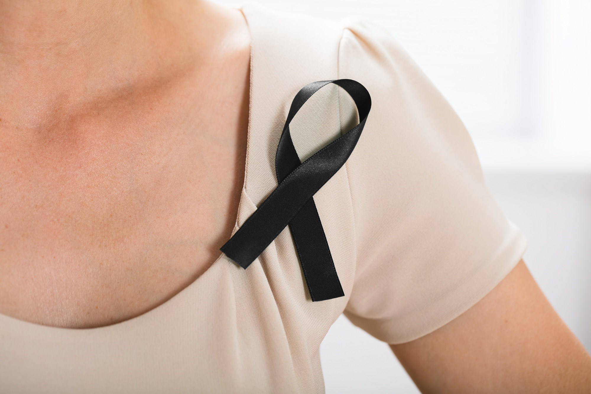 Cancer Mortality Up for 2nd-, 3rd-Generation Latino Immigrants