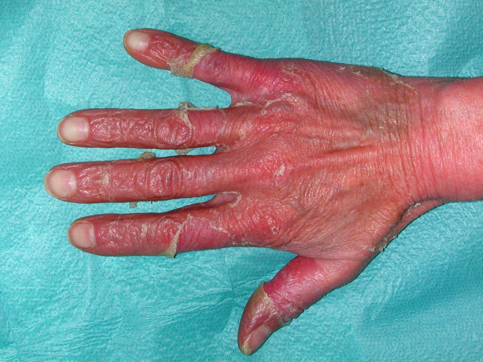 Consensus on Global Assessment Quality Measure for Inflammatory Skin Disorders