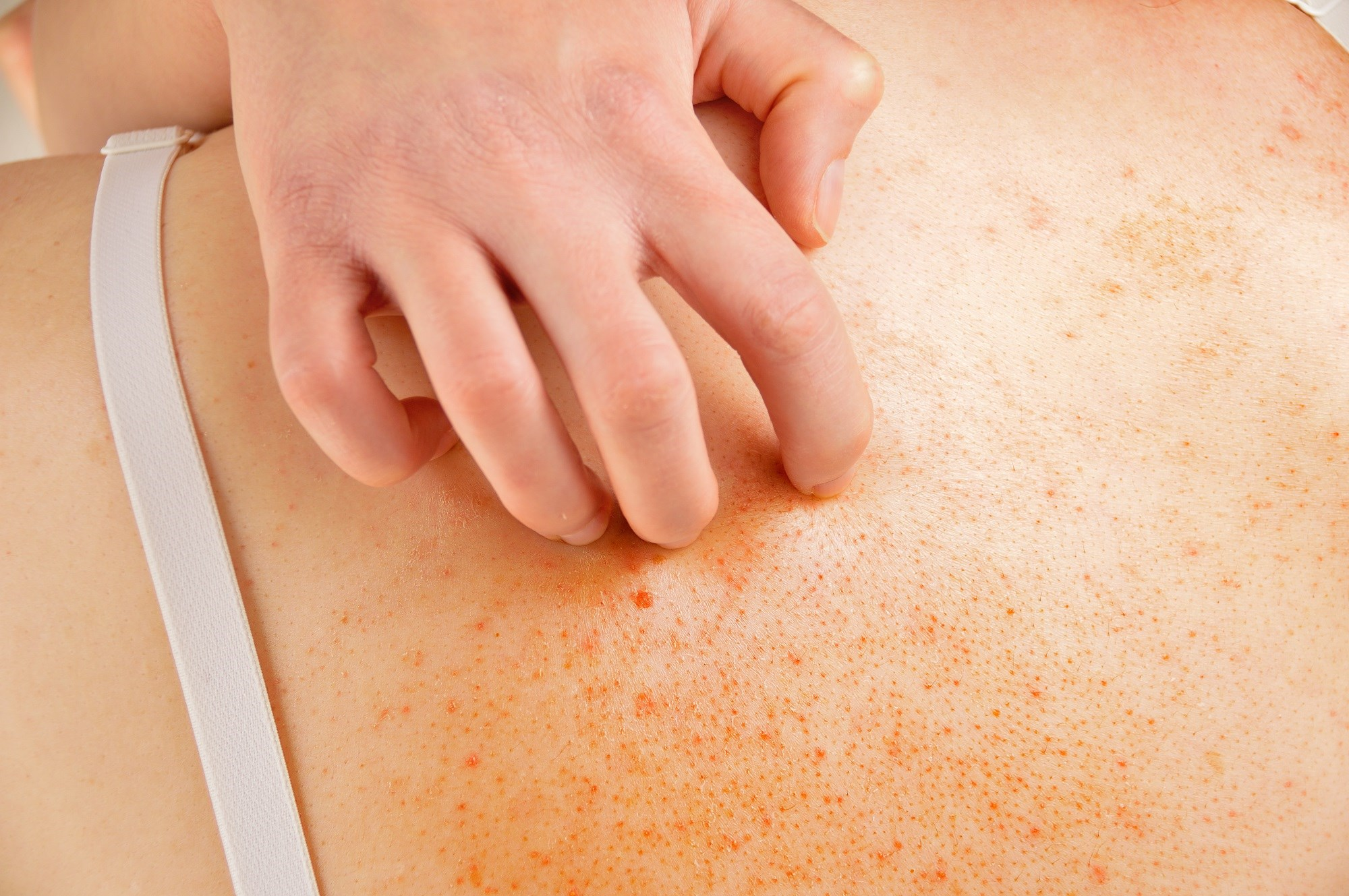 Upadacitinib Improves Pruritus in Moderate to Severe Atopic Dermatitis
