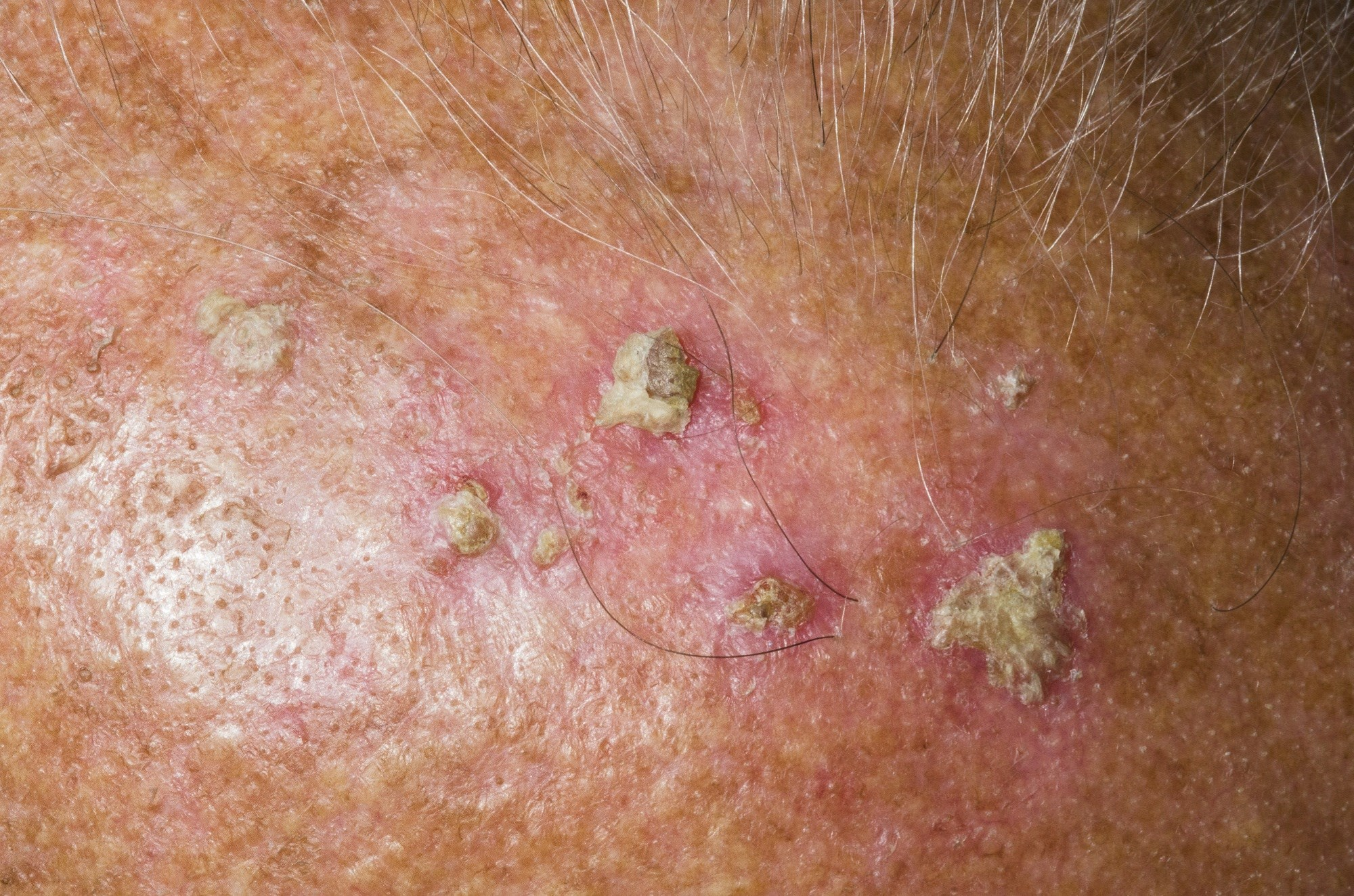 Higher Concentration, Fewer Applications of Resiquimod Gel Effective for Actinic Keratosis Treatment