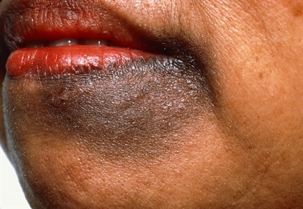 Common Skin Conditions in People of Color: Identification and Treatment
