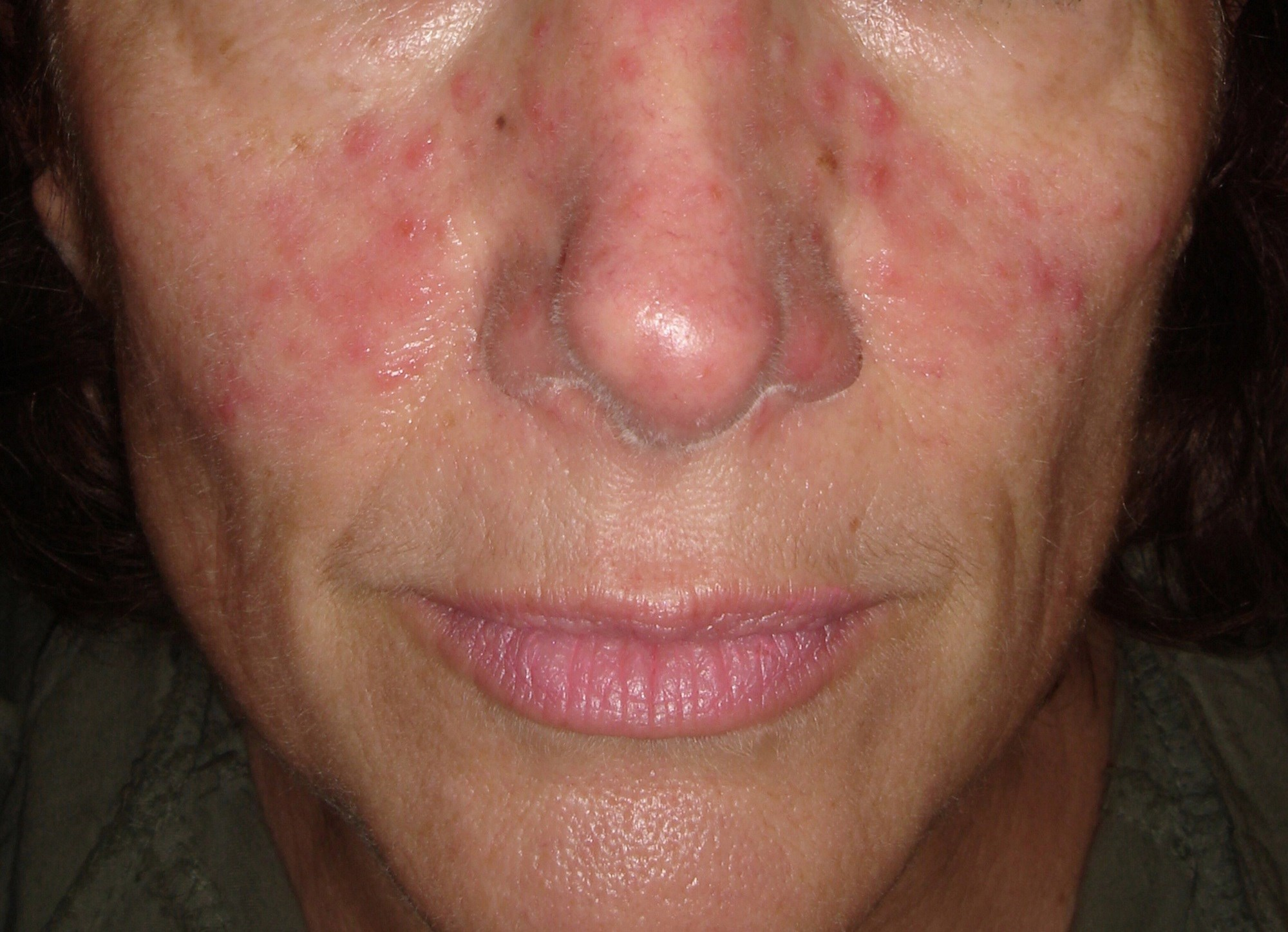 Skeletal Muscle Mass May Be Protective Against Rosacea Severity