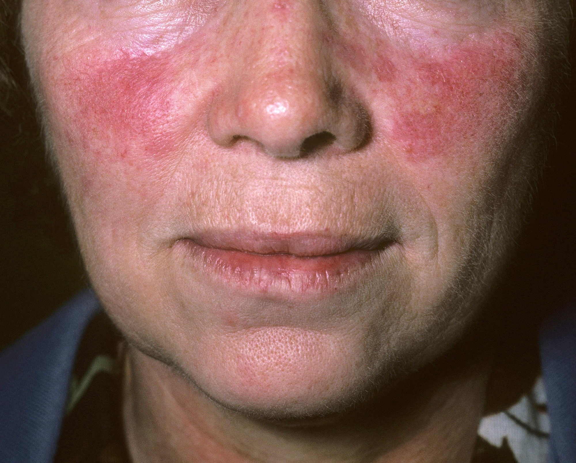 Botulinum Toxin Type A Effective for Treating Rosacea Facial Flushing