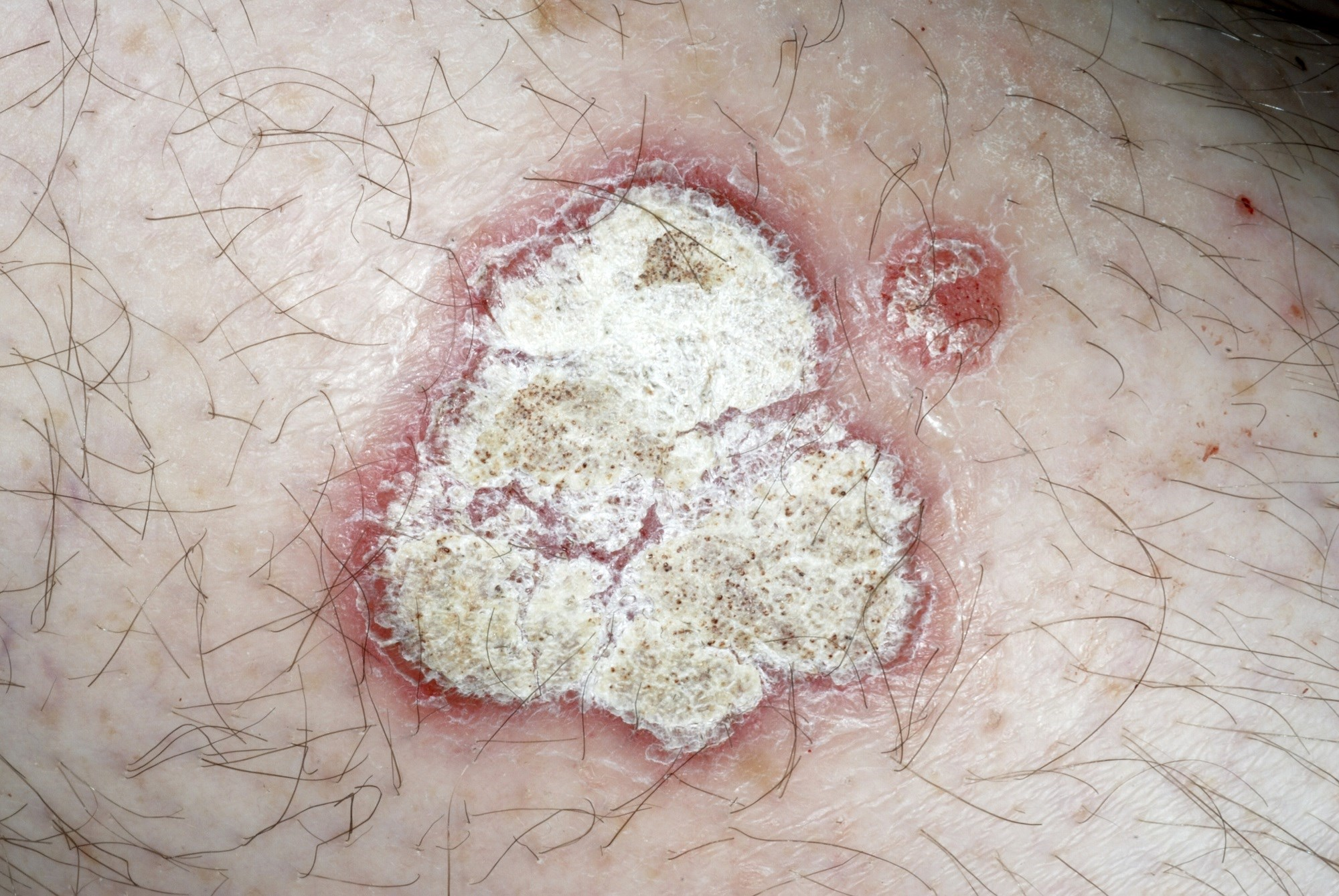 Ixekizumab Deemed Safe, Effective for Plaque Psoriasis in Real-World Study
