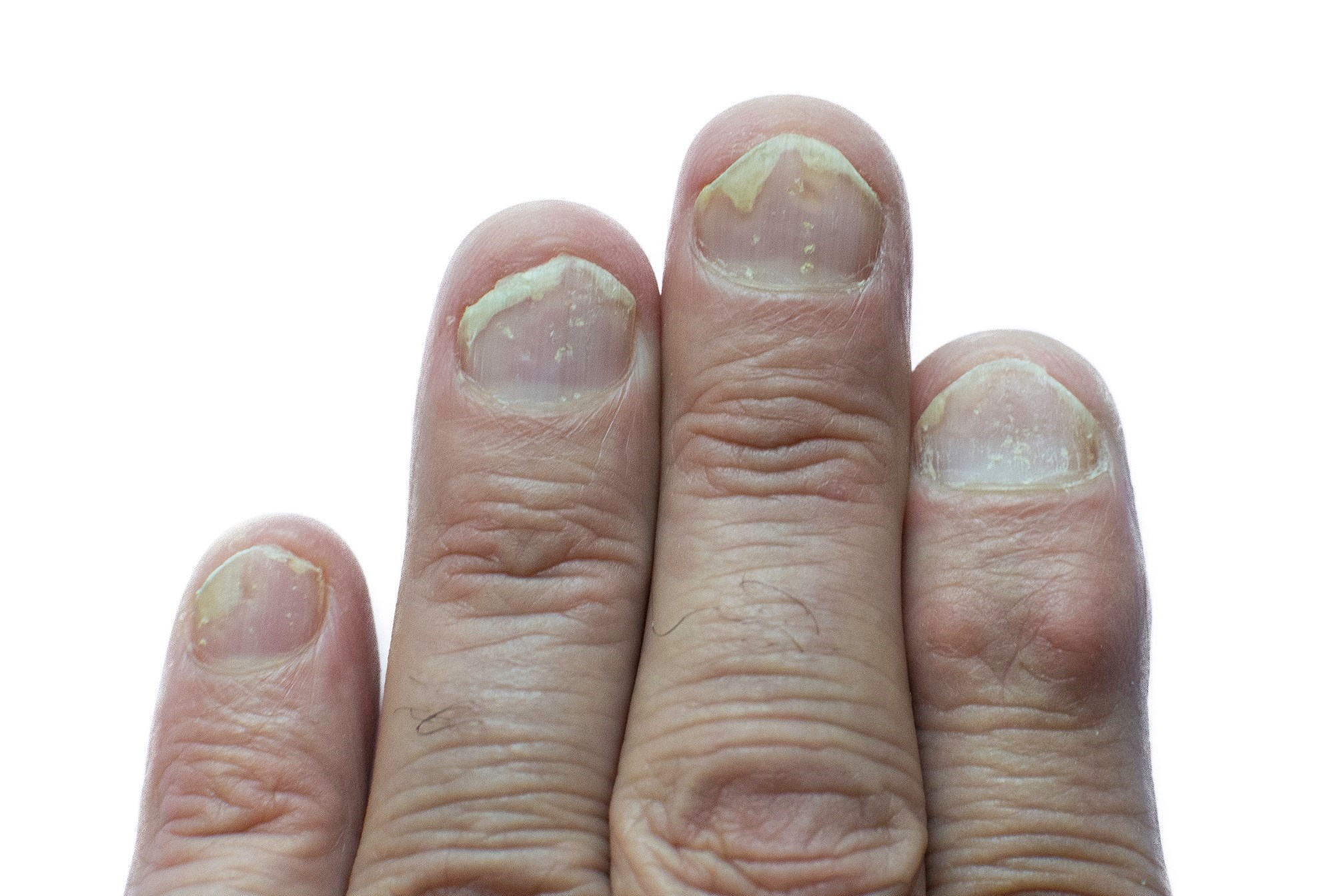 Secukinumab Superior to Placebo for Treatment of Moderate to Severe Nail Psoriasis