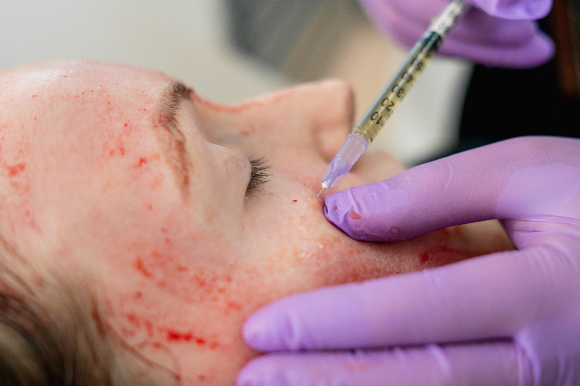 PRP May Reduce Visible Signs of Photoaging in Facial Rejuvenation