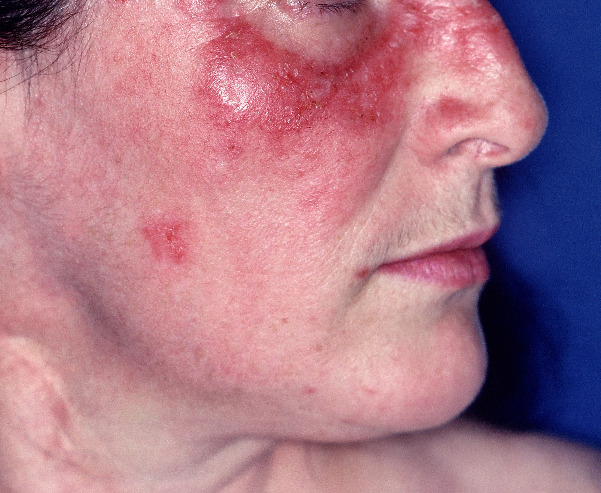 B-Cell Depletion Therapy With Rituximab Effective for Cutaneous Lupus Erythematosus