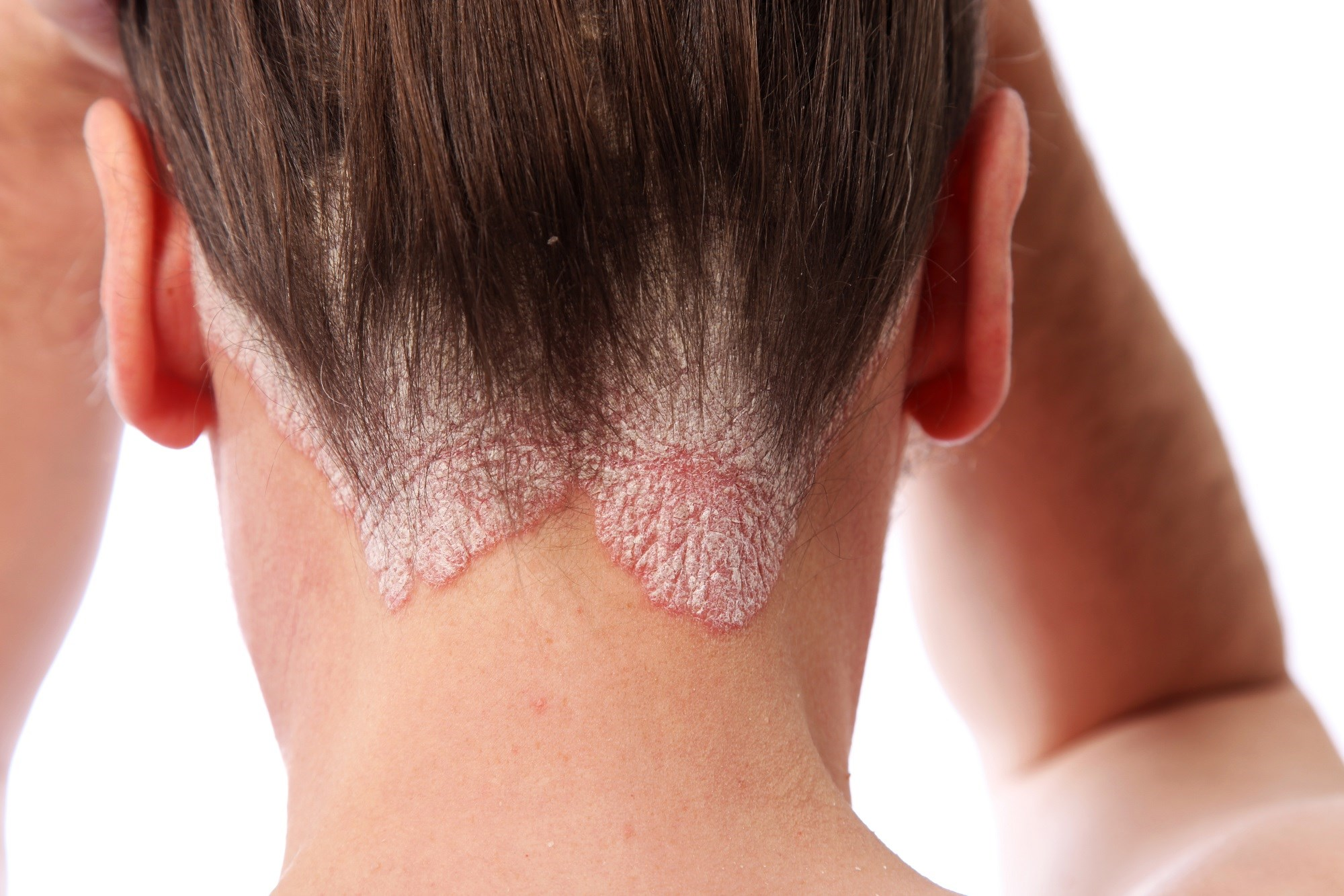 Depending on the definition used, there are large variations in the proportion of patients identified as having moderate-to-severe psoriasis.