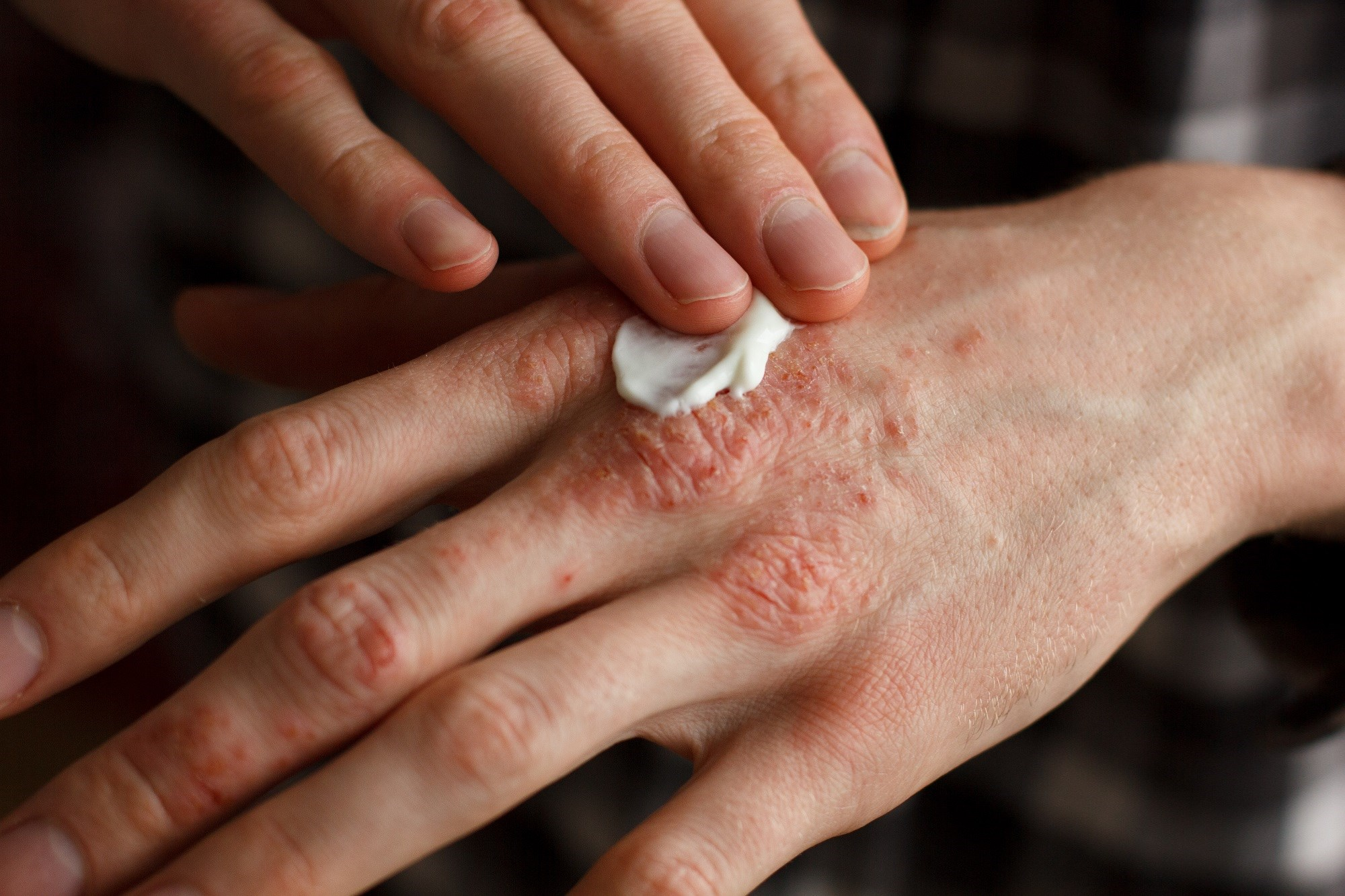 Fixed-combination HP/TAZ lotion to manage moderate to severe plaque psoriasis was effective and superior to individual active ingredients.