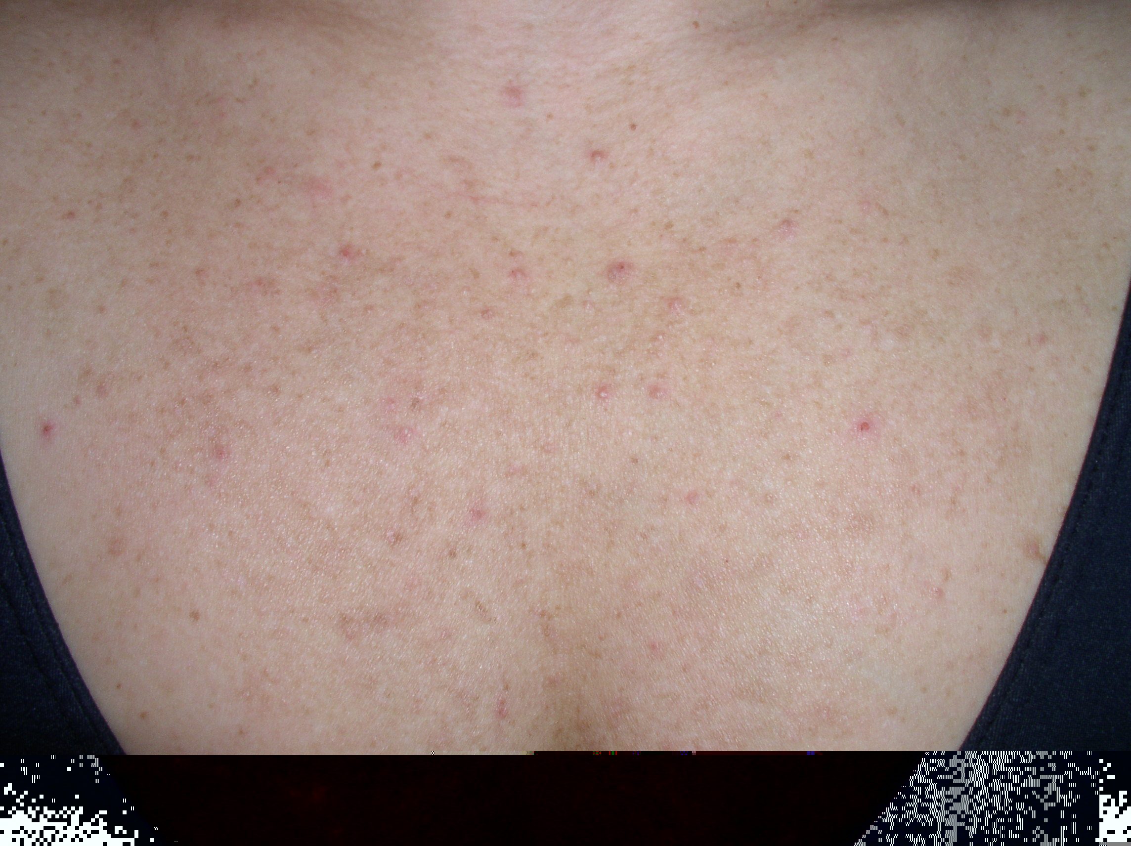 does back acne from steroids go away