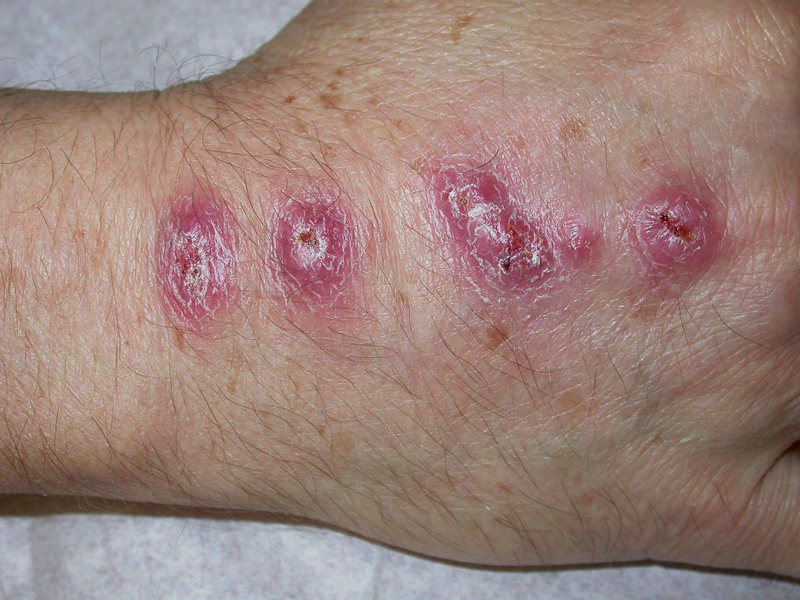 Keloids And Hypertophic Scars Keloid And Hypertrophic Scars