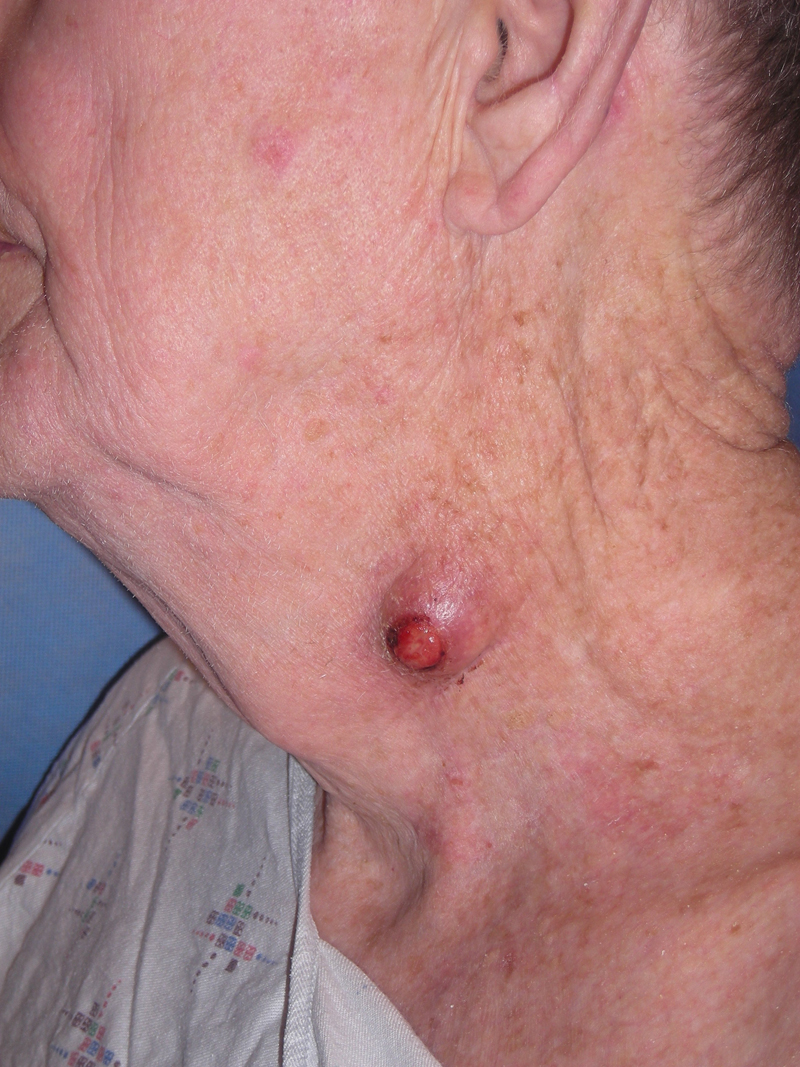 Are facial cysts caused by meth galleries 559