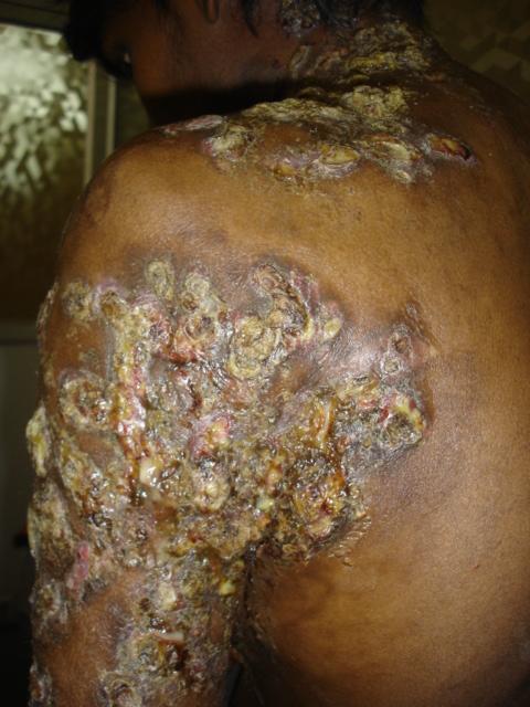 mycetoma madhura foot madhura mycoses eumycetoma