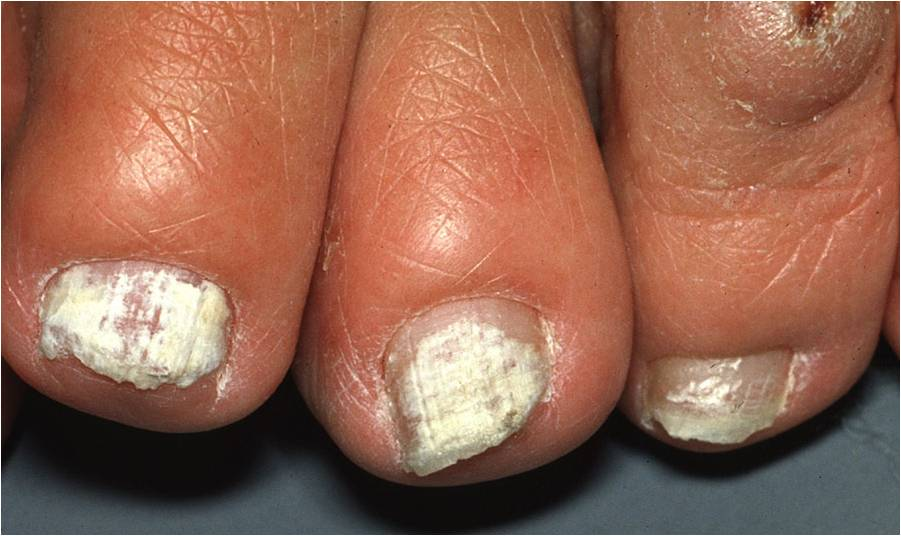 Superficial Onychomycosis Courtesy Of Philip Fleckman MD