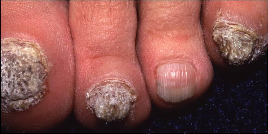 Onychomycosis (Tinea unguium, Nail fungal infection)