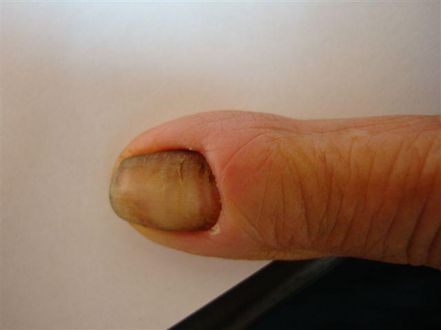 Paronychia: acute and chronic (nail disease, felon/whitlow)