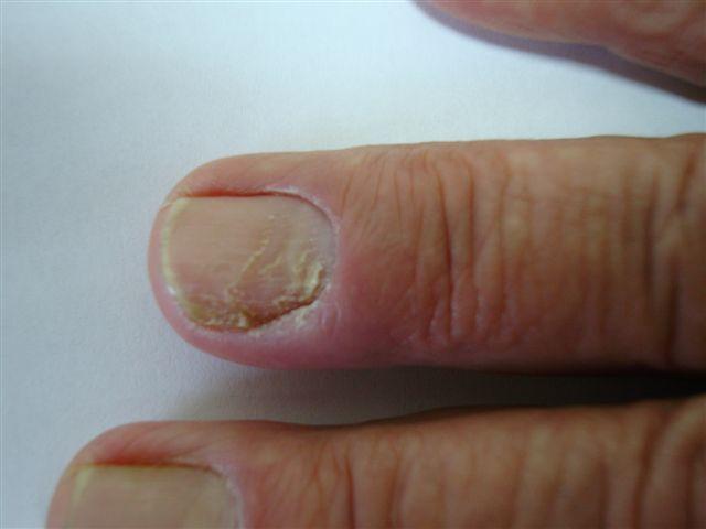 Paronychia Acute And Chronic Nail Disease Felon Whitlow