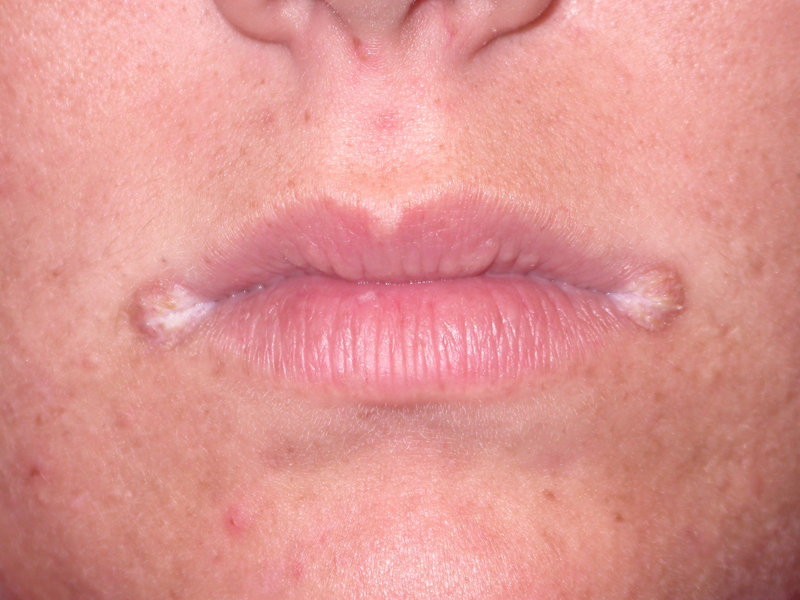 Angular Cheilitis (Perleche, Angular Stomatitis, Cheilosis)