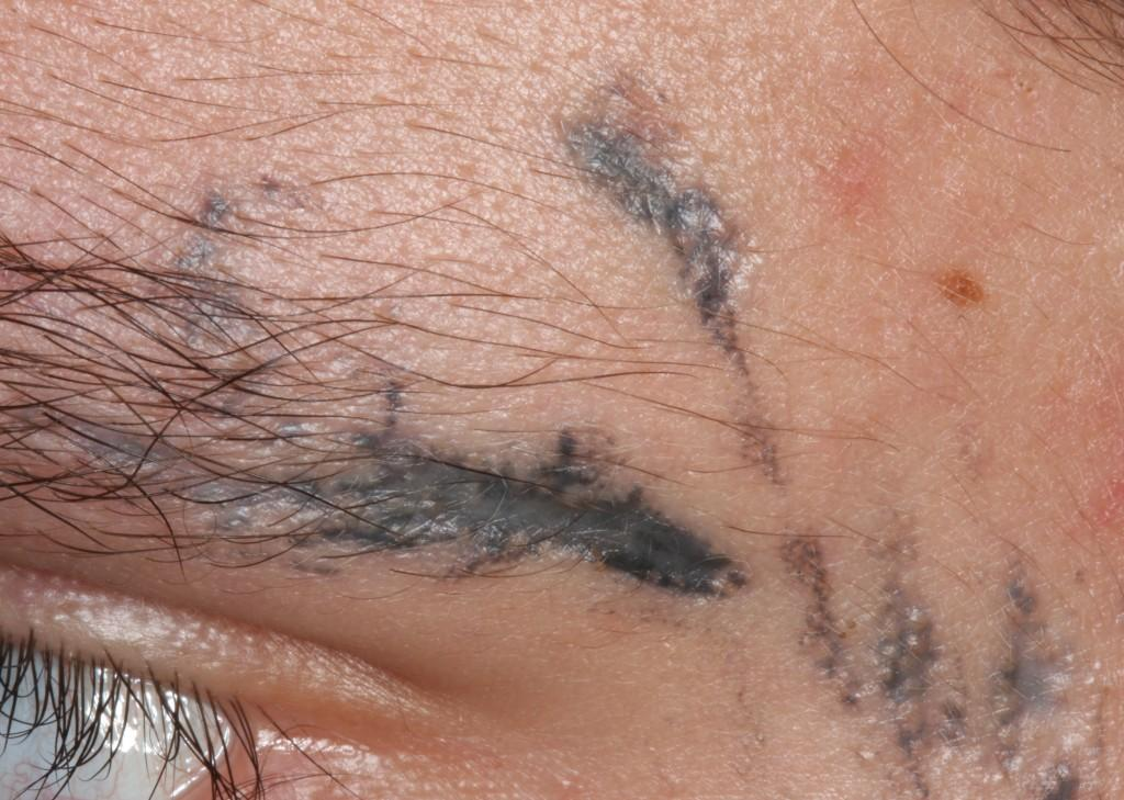 Inflammatory Tattoo Reaction