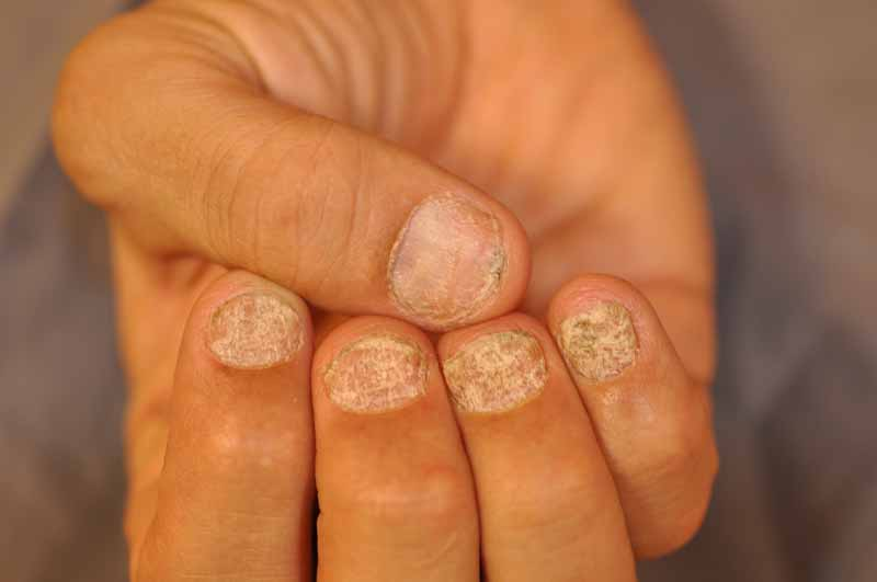 Trachyonychia (Rough Nails)
