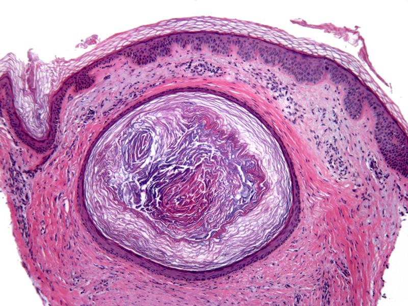 Epidermal  Infundibular  Cysts