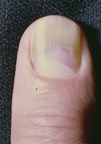 Green Nail Syndrome GNS Pseudomonas Infection Chloronychia