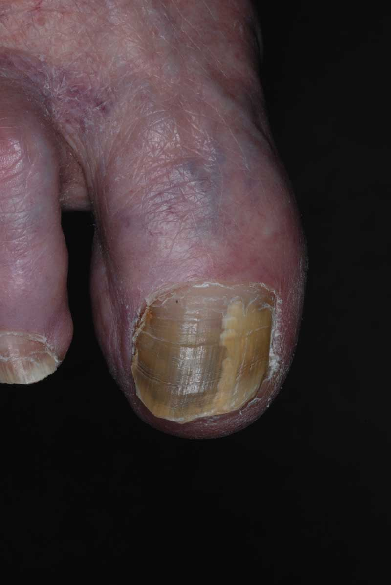 Green Nail Syndrome (GNS, Pseudomonas nail infection, chloronychia ...