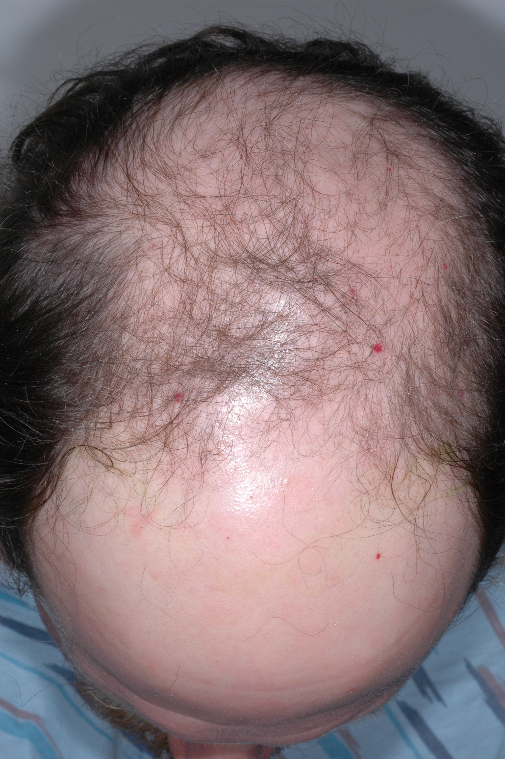 Thyroid Hair Loss Pattern Amazing Inspiration Design