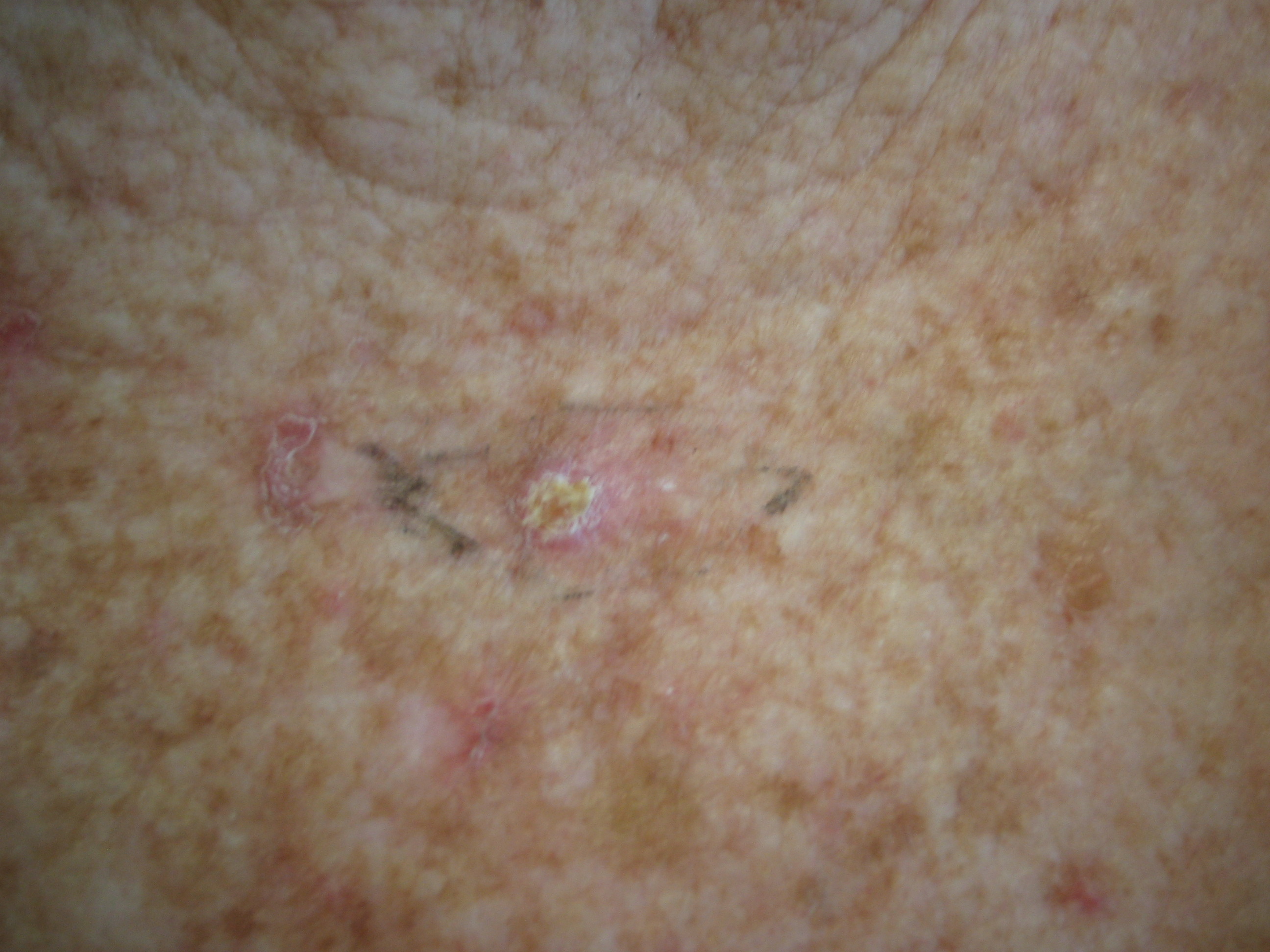 Bowen's Disease (squamous cell carcinoma in situ) on the chest.
