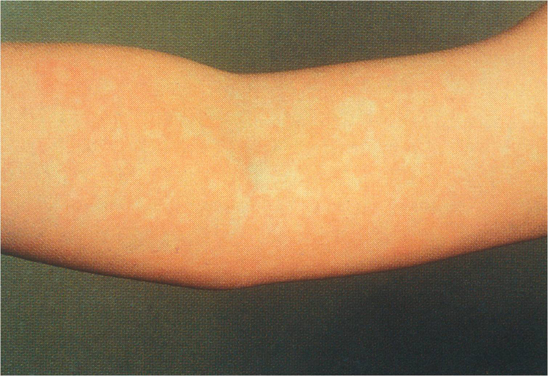 Erythema Infectiousum (Fifth Disease, Slapped Cheek Syndrome)