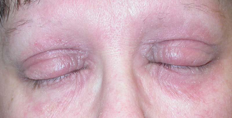 Eyelid Dermatitis (xeroderma of the eyelids, eczema of the eyelids ...