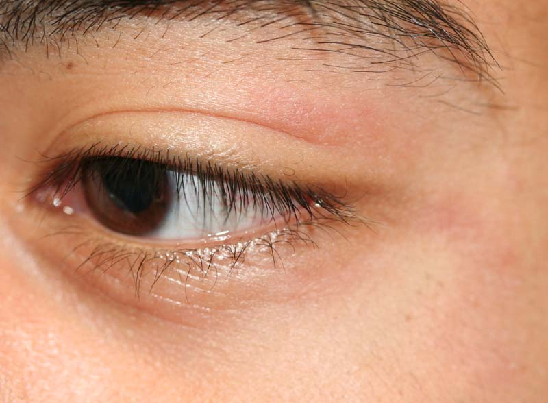 Eyelid Dermatitis Xeroderma Of The Eyelids Eczema Of The Eyelids